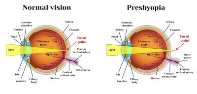 Causes of presbyopia