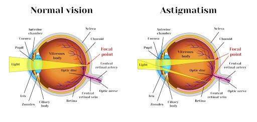 Causes of astigmatism